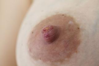 cracked nipples
